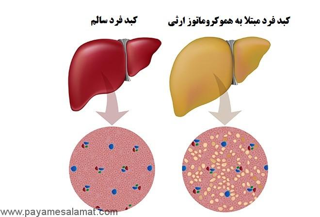 هموکروماتوز بیماری افزایش میزان آهن در بدن