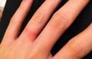 چرا برخی از افراد به جوهرات حساسیت دارند؟