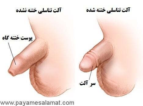 التهاب نوک آلت تناسلی مردان (بالینیت)