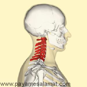 انواع سردرد پس از تصادف و علائم آن ها