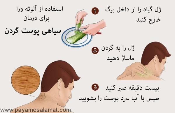 روش های خانگی روشن کردن سیاهی پوست گردن