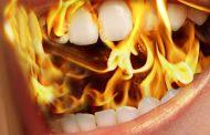 احساس سوزش دهان به چه علت است؟