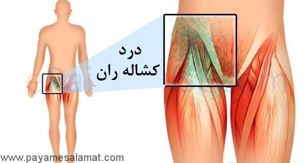 چه چیزی باعث درد کشاله ران می شود و درمان آن چیست؟