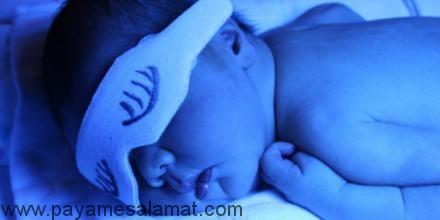 علائم و نشانه های زردی نوزاد و روش های درمان آن