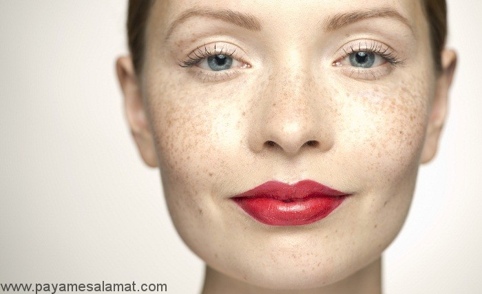 علت رنگ پریدگی پوست چیست؟