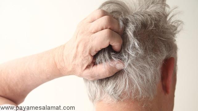 علل درد پوست سر و درمان های آن