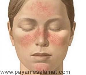علت ایجاد دانه های پوستی و درمان آن