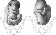 خارج شدن نوزاد از رحم با پا یا همان زایمان بریچ