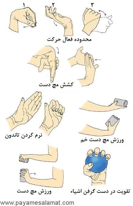 علت و علائم درد مچ دست چیست؟