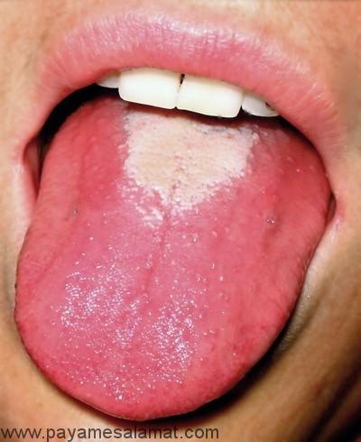 التهاب زبان
