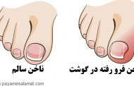 درمان فرو رفتن ناخن پا در گوشت