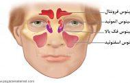 علت ایجاد سینوزیت پیشانی و علائم آن