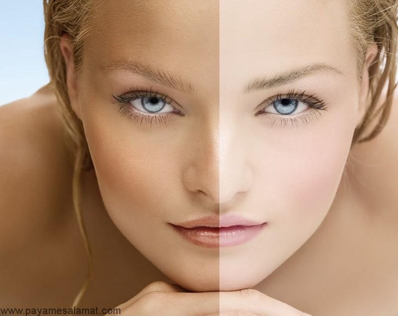 علت تغییر رنگ پوست چیست؟