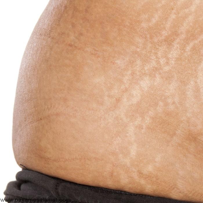 ترک های پوست و روش های درمان آن