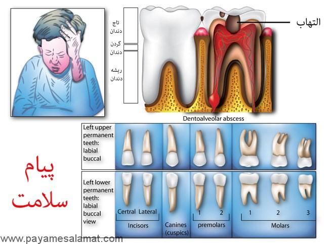 التهاب دندان و دندان درد