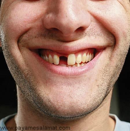 علت لق شدن دندان در بزرگسالی چیست؟