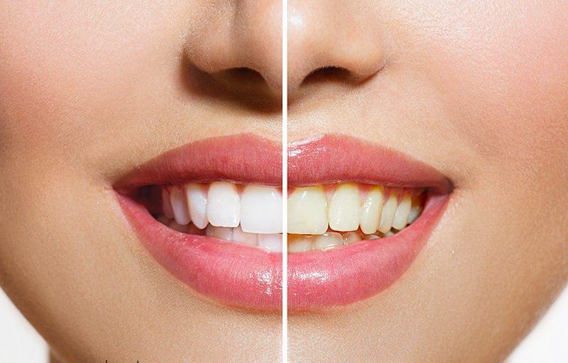 علت تغییر رنگ دندان چیست؟