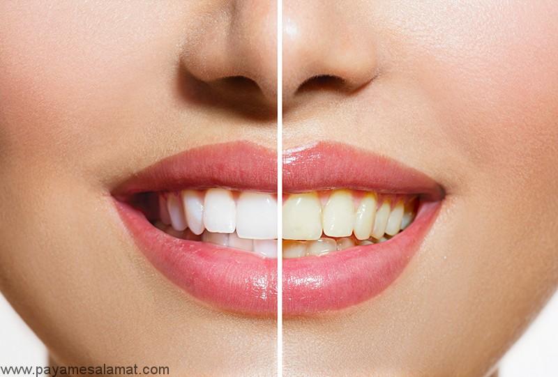 علت تغییر رنگ دندان چیست و چگونه می تواند از تیره شدن دندان ها جلوگیری کرد