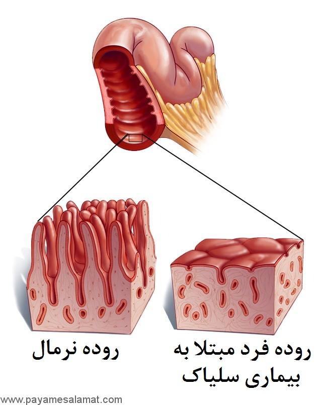 علائم، تشخیص و رژیم غذایی مناسب برای بیماری سلیاک