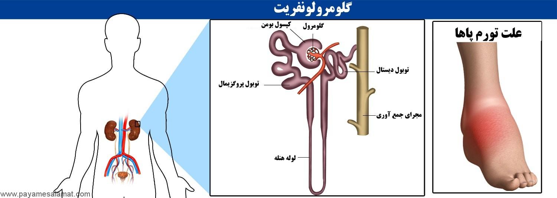 علت، نشانه و درمان گلومرولونفریت