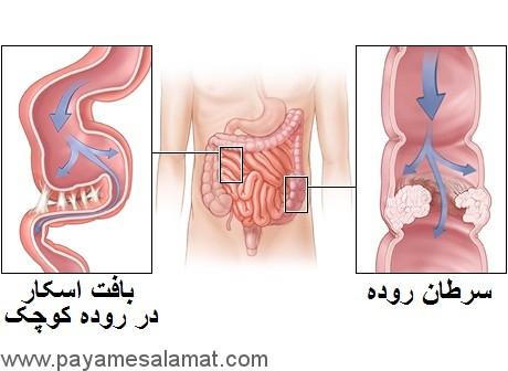 انسداد روده چیست؟ چه نشانه ها و علتی دارد؟