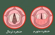 التهاب حنجره یا لارنژیت چیست؟