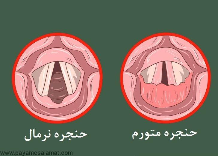 آشنایی با بیماری التهاب حنجره یا لارنژیت