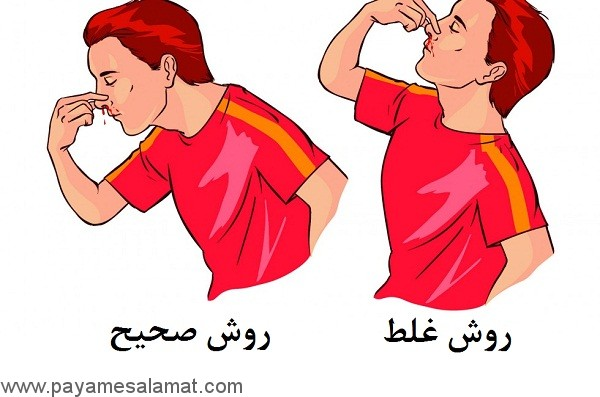 خون دماغ یا خونریزی از بینی، علائم، علل، درمان و پیشگیری