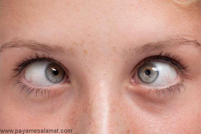 علائم، علل و درمان های انحراف چشم