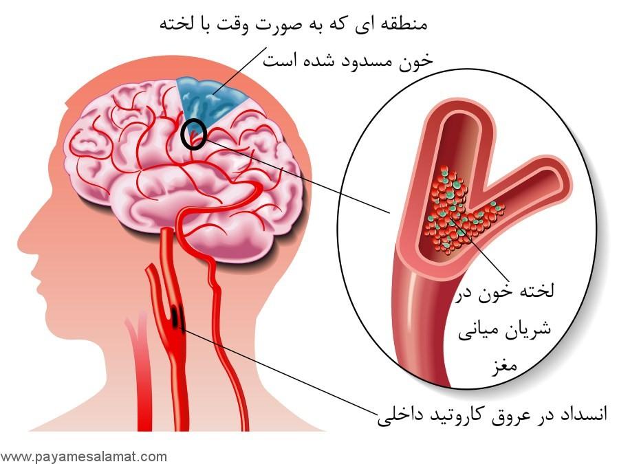 نشانه ها، علل و درمان های موثر در حمله ایسکمیک گذرا