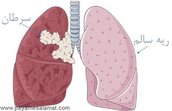 علائم، خطرات و درمان های دارویی و غیر دارویی سرطان ریه