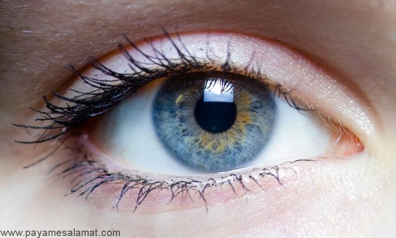 حرکت غیر عادی چشم یا اختلال نیستاگموس