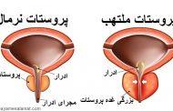 التهاب غده پروستات یا پروستاتیت