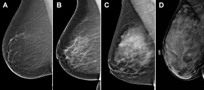 آیا بافت متراکم سینه خطر ابتلا به سرطان پستان را افزایش می دهد؟