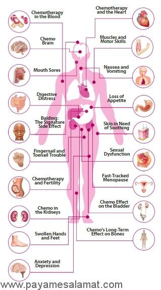 عوارض جانبی شیمی درمانی بر روی نقاط مختلف بدن