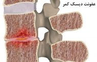 نشانه، علل و درمان های عفونت دیسک کمر (دیسکیتیس)