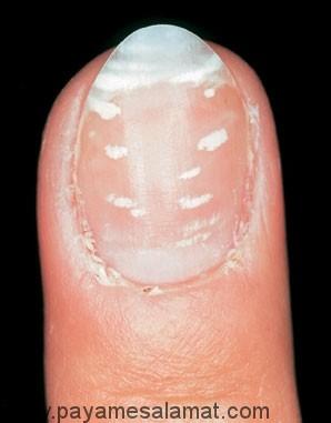 علت وجود لکه های سفید روی ناخن ها (Leukonychia) و درمان آن