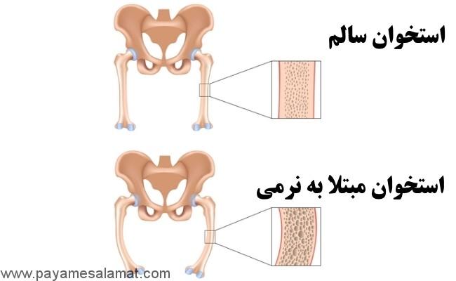 نرمی استخوان (استئومالاسی) از علت و علائم تا درمان