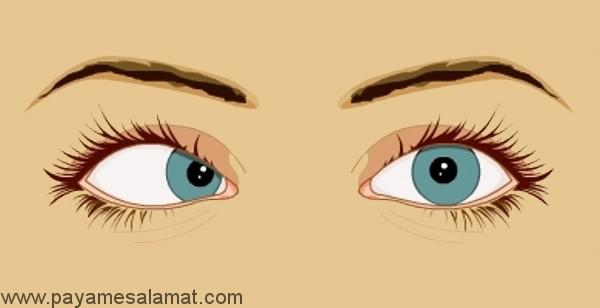 علل، نشانه ها و درمان فلج عصب ششم چشم
