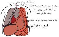 علت، نشانه، درمان و پیشگیری از فتق دیافراگم