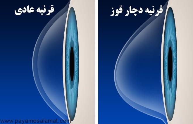 علت ایجاد قوز قرنیه و روش های درمان با لنز و عمل جراحی