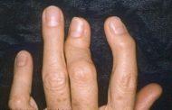 دانستنی های مهم در مورد آرتریت پسوریاتیک