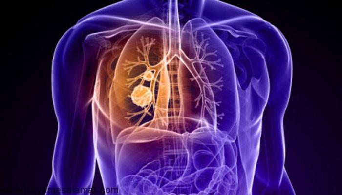 انواع، علائم و درمان سل ریوی (TB)