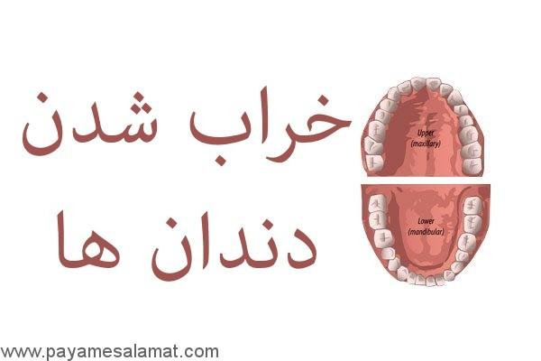خراب شدن دندان ها