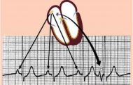 ضربان زودرس دهلیزی یا اختلالات ریتم با منشا دهلیزی PAC