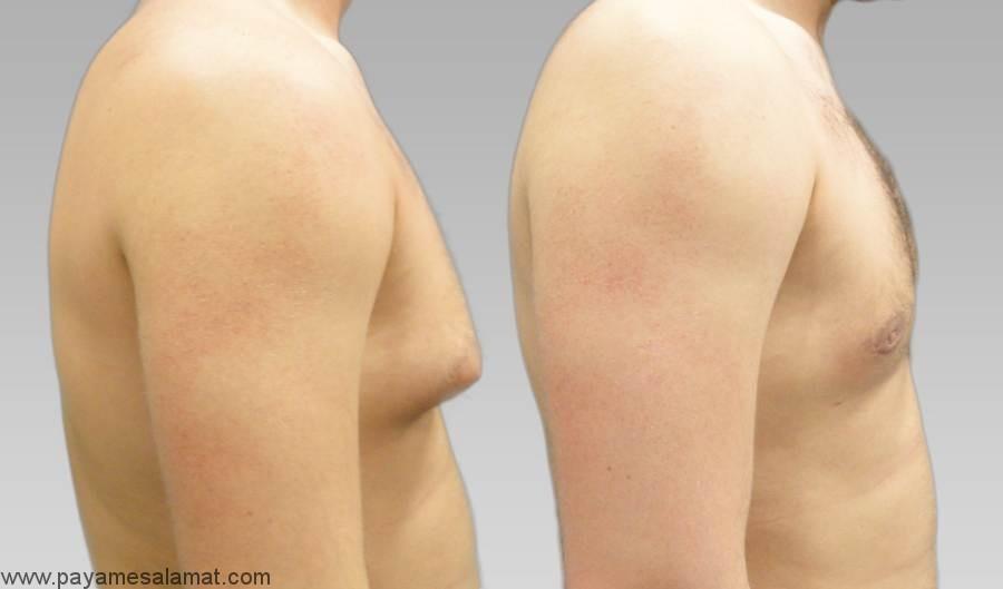 اختلالات پستان در مردان
