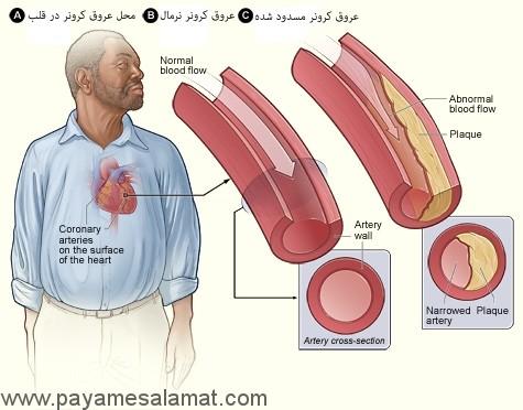 شکل A محل عروق کرونر در قلب را نشان می دهد. شکل B شریان کرونر نرمال با جریان طبیعی خون را نشان می دهد. تصویر الحاقی نیزز یک مقطع شریان کرونر نرمال نشان می دهد. شکل C شریان باریک شده نشای از رسوب پلاک را نشان می دهد. ایجاد پلاک جریان خون غنی از اکسیژن از طریق شریان محدود می کند. تصویر الحاقی یک مقطع از عروق پلاک تنگ شده نشان می دهد.