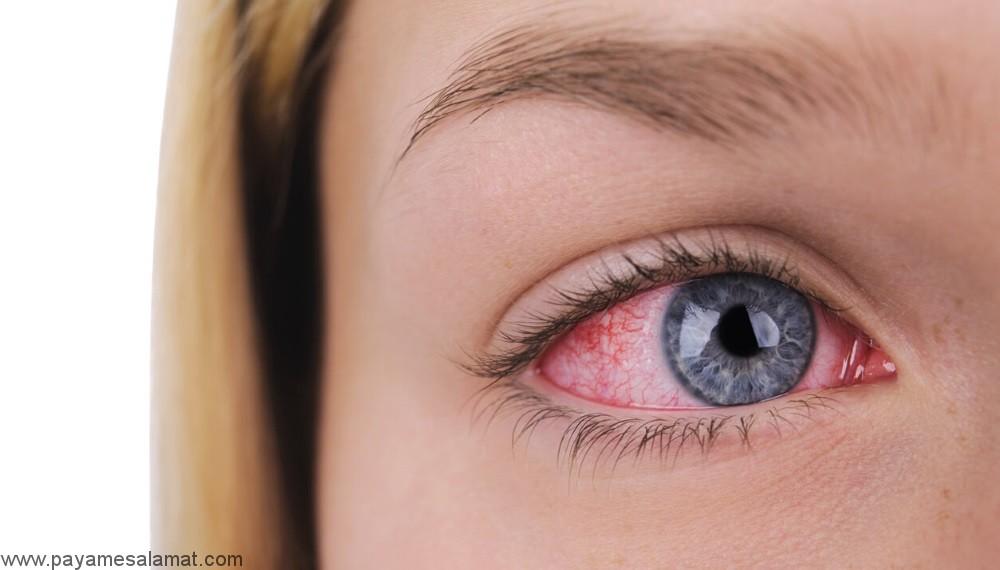 نشانه ها، علائم، علل و درمان تراخم