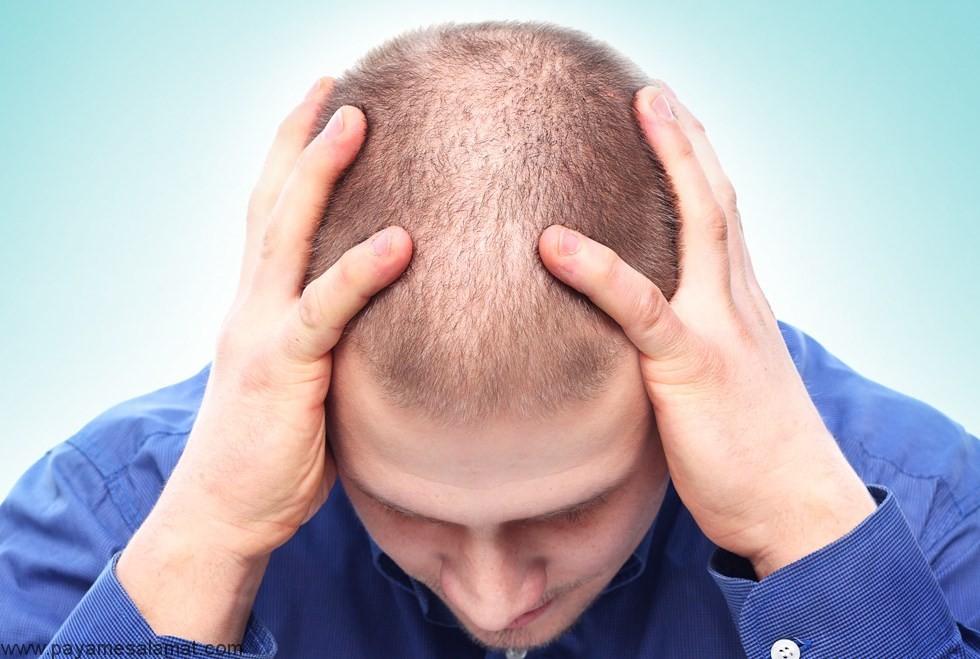 معرفی بهترین داروها برای درمان ریزش مو در زنان و مردان