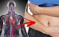 آنوریسم آئورت شکمی چیست و چگونه درمان می شود؟